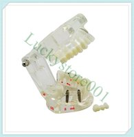 Wholesale 2015 Brand New and Super Sale Dental Implant Disease Teeth Model with Restoration Bridge Tooth