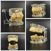 Wholesale Dental Study Tooth Transparent Adult Pathological Disease Teeth Model