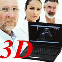 Wholesale Digital portable Laptop Ultrasound Scanner MHZ Convex Probe external D USB