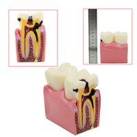 Wholesale Oral Model Times Dental Caries Comparison Model Dental Tooth Model