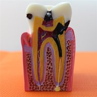 Wholesale Brand New Dental Teach Study Teeth Model Times Caries Comparation Tooth Model Patient Education Model M2