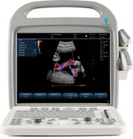 Wholesale Portable Ultrasound Color Doppler Diagnostic System EW C10 with convex and linear probe portable ultrasound scanner