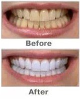 Wholesale 10PCs Teeth Whitening Pen Soft Tooth Gel Product Silvery White Bleach Stain Eraser g Whitening Tooth Care Tool Whitening Kit
