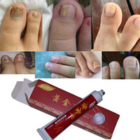 anti fungal - Rushed Sale New Nail Treatment onychomycosis Paronychia Anti Fungal Infection Good Result Chinese Herbal Toe