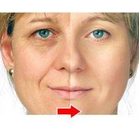 Wholesale Argireline aloe vera collagen peptides rejuvenation anti wrinkle Serum for the face skin care Colageno anti aging cream