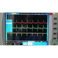 Wholesale Owon SDS7102V B Digital Oscilloscope MHz channels GS s inch LCD TFT display SDS7102 USB LAN VGA Battery Bag