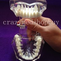 Wholesale NEW Dental Implant Study Analysis Demonstration Teeth Model with Restoration