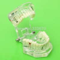 Wholesale New Simulation Dental Implant Disease Teeth Model With Bridge and Caries Tooth