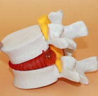 Wholesale Human Lumbar Vertebrae Model with Prolapsed Intervertebral Disc