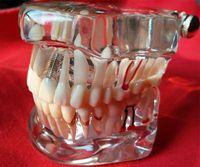 al por mayor dientes puenteados-Modelo dental de los dientes de la enfermedad del implante dentales desprendible con el diente del puente de la restauración