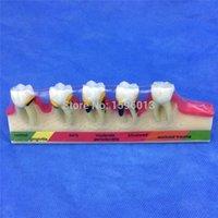 Wholesale Periodontal disease classification model teeth disease model