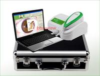 Wholesale Free DHL UPS Shipping MP High Resolution USB Digital Iris Analyzer Iriscope Iridology Camera Iris Diagnosis System U