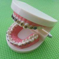 Wholesale B901 Plastic Dental model Orth othodontic teeth model with Metal Bracket