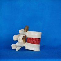 best medical devices - best price made in China medical model lab equipment human vertebral spine ball education device factory