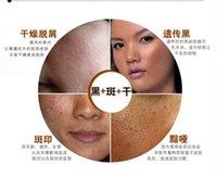 Moisturising acne detox - g Chinese medicine acne Free shippng350g Herbal mask mud whitening rejuvenation cream pores detox