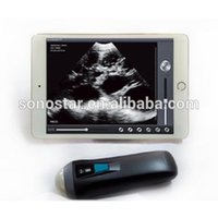 Wholesale Uprobe Sonostar wireless probe portable ultrasound machine for pregnancy with CE for sale