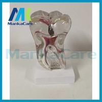 anatomical skeleton for sale - Manka Care Anatomical odontologia Human Anatomical Pathological Study Tooth Disease Teeth Model skeleton for sale