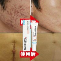 acne pigmentation scars - Nuobisong face care acne scar removal cream Acne Spots skin care treatment whitening face cream stretch marks moisturizing g