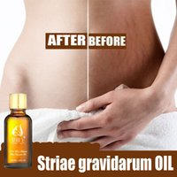 Wholesale For Pregnant Women Postpartum Recovery Removal of Stretch Marks Remover Obesity Marks SPA Massage Essential Oil ml