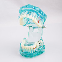 Wholesale For dentist studying and researching New Dental Study Tooth Transparent Adult Pathological Teeth Model