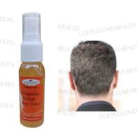 alopecia areata - Sunburst alopecia areata Hair regrowth treatment For Men Women hair concealer grow eyebrow body hair natural growth hormone oil