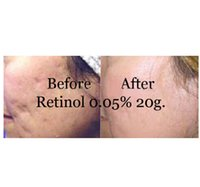 anti wrinkle vitamins - New retinol vitamin a cream retin acne anti wrinkles blemish treatment g for skin care