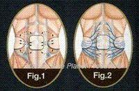abdominal men - 2011 System Abs Abdominal Muscle Fitness Belt For Man belt jewelry belt buckles for women