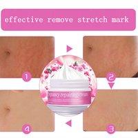 Wholesale Stretch mark cream skin bleaching cream for dark skin scar removal cream skin care for pregency repairing cream