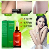 Wholesale Minimun Order Body Skin Care Effective Essential Oil Remove goose bumps Red dots pimples foliculitis Repair Silky Skin