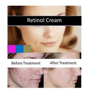 Wholesale 2016 New g Retinol Vitamin A Cream Retin Acne Anti Wrinkles Blemish Treatment