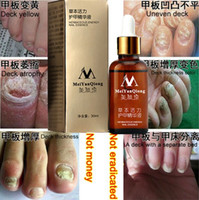Wholesale Original MeiYanQiong Fungal Nail Treatment Essence Nail and Foot Whitening Toe Nail Fungus ProfessionRemoval Feet Care Nail Gel