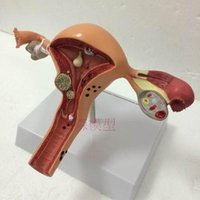 Wholesale Ovary and uterus disease Dissection model cm