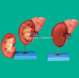 Wholesale Kidney and Adrenal Gland Model Renal Anatomy Model Adrenal anatomy Model Part