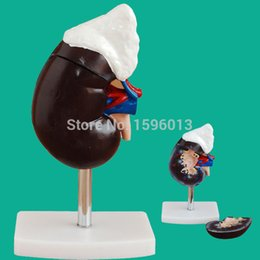 Wholesale Human Kidney with Adrenal Gland Model parts Kidney and Adrenal Gland Model