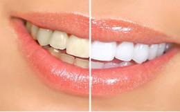 Wholesale 10pcs Teeth Whitening Pen Soft Brush Applicator For Tooth Whitening Dental Care Whitener Gel Cheapest Teeth whiter