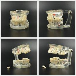 Wholesale NEW Dental Implant Study Analysis Demonstration Teeth Model with Restoration