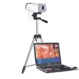 Wholesale 800 pixels Digital Video Electronic Colposcope SONY Software Gynecology