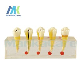 Wholesale Dental Pulp Disease Clinical Model This model visually demonstrates treatment stages during a root canal curing procedure