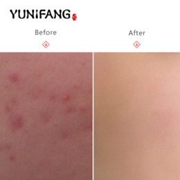 face care YUNIFAG Acne treatment face blackhead remover mask,Deep Cleansing the Black head,acne treatments masks,blackhead mask