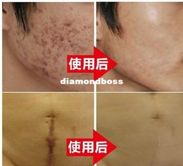 Wholesale 2016 hot sales Nuobisong facial scar removal cremas facial Spots treatment whitening face cream stretch marks moisturizing