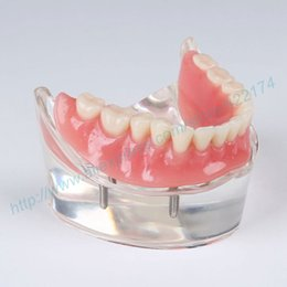 Wholesale restoration model with implants dental teaching study tooth teeth model dentist dentistry odontologia