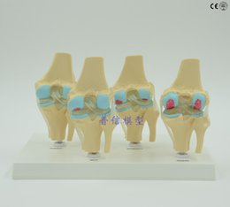 Wholesale Human knee joint disease model bone tissue four stage knee joint model Department of orthopedics model medical