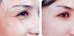 Wholesale Facial filler Dermal Gel ml