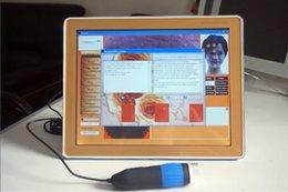 Wholesale 2in1 portable hair Skin Analyzer Skinscope Skin tester Skin Analysis machine