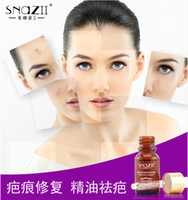Wholesale Scar Repair Oil Lavender Essence Natural Pure Remove Ance Burn Strentch Marks Scar Removal ML