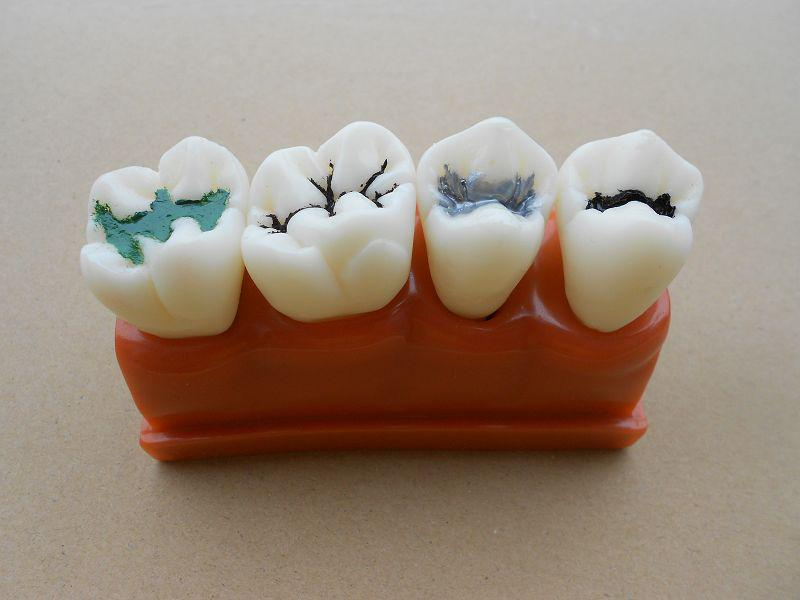 Dental decay prevention study