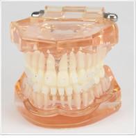 Cheap Dental lab Dentist orthodontic endodontics tool Teaching Orthodontics model for demonstration with ceramic bracket