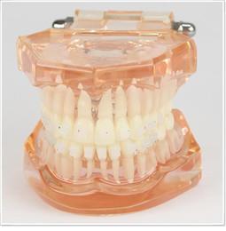 Wholesale Dental lab Dentist orthodontic endodontics tool Teaching Orthodontics model for demonstration with ceramic bracket