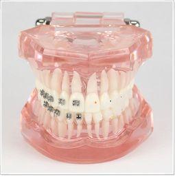 Wholesale Dental lab Dentist orthodontic endodontics tool Teaching Orthodontics model for model with half metal and half ceramic bracket