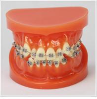 Cheap Dental lab Dentist orthodontic endodontics tool TeachingOrthodontic model with lip-side metal bracket